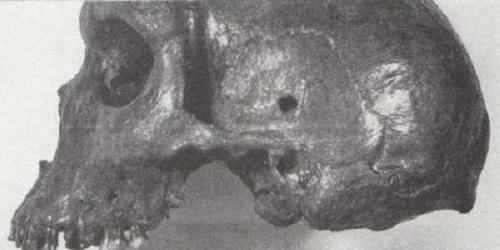 射殺されたネアンンデアタールジンの頭蓋骨